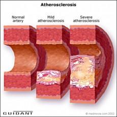 Артериосклероза