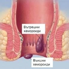 Хемороиди