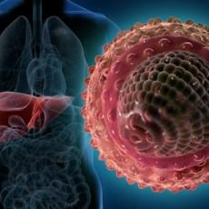 Хепатит