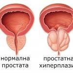 Хиперплазия на простатата