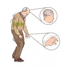 Паркинсонова болест